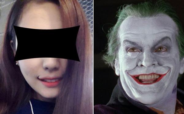"""""""Smile Lipt"""", la cirugía para tener sonrisa de """"El guasón"""", de moda en Corea del Sur"""
