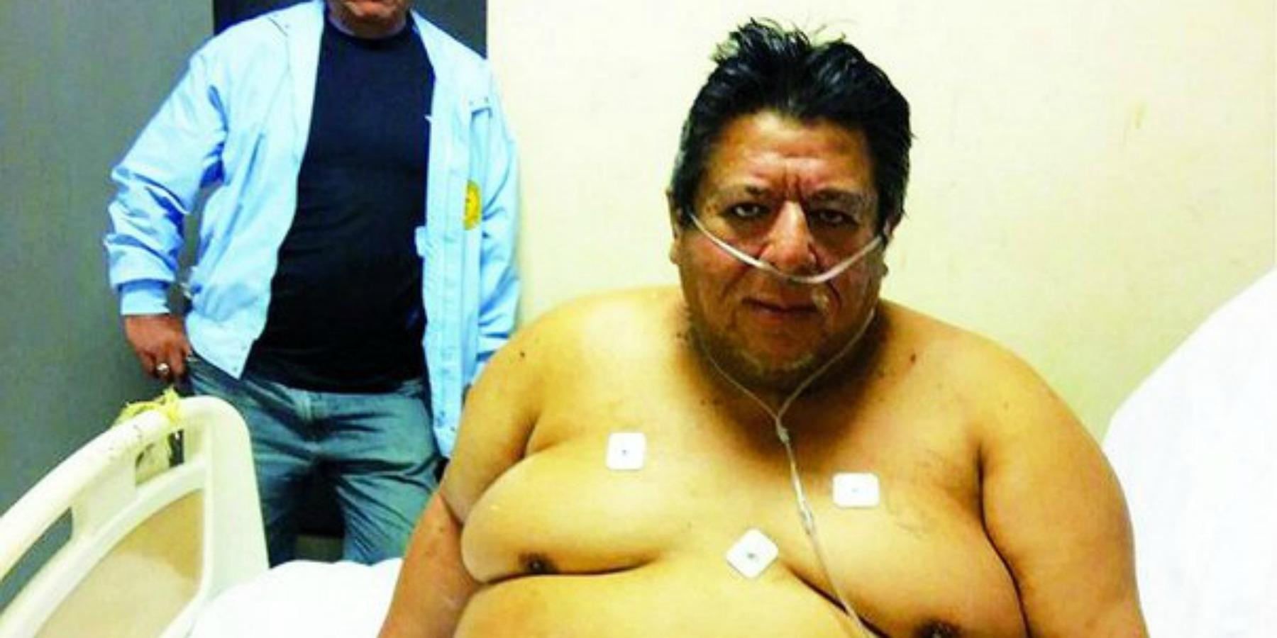 El hombre más obeso del Perú se encuentra en Tumbes y está enfermo